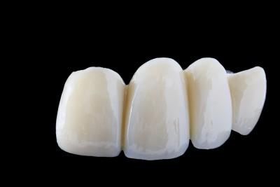 Zahnbruecke