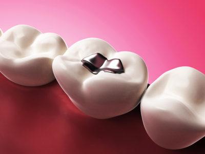 Zahnfuellung aus Amalgam