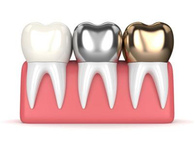 Zahnkrone Material im Vergleich