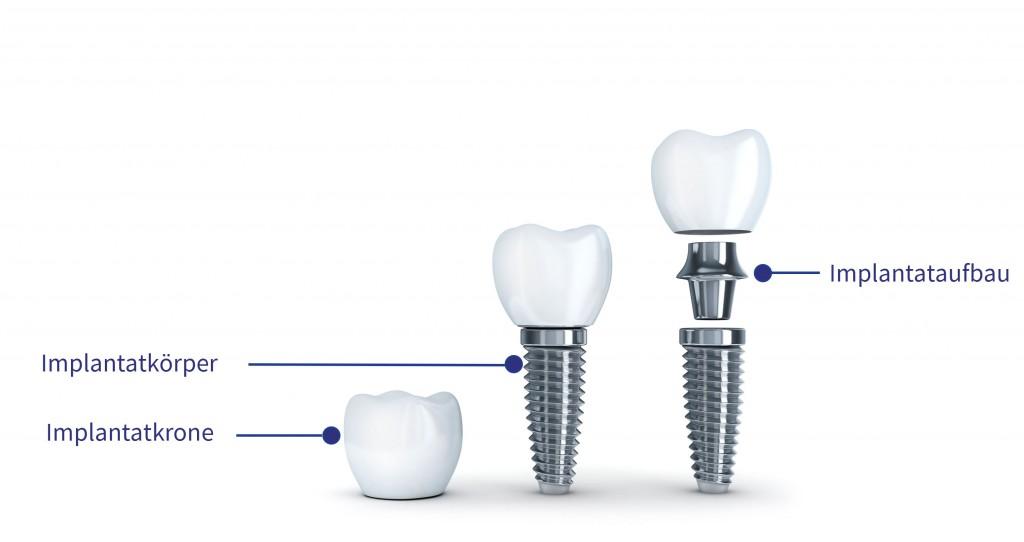 implantataufbau