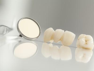 Zahnbruecke kosten
