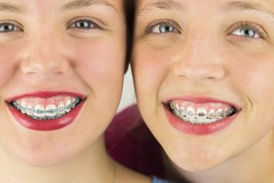 Zahnspange maedchen